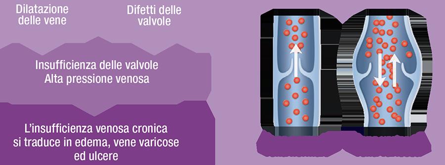 insufficienza venosa cronica