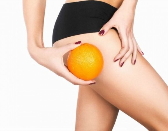 cellulite-buccia-d-arancia_o_su_horizontal_fixed