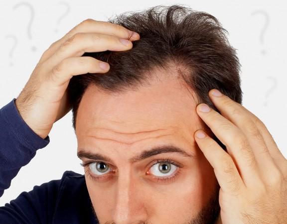 calvizie_uomo_1_cause_hairclinic_mb